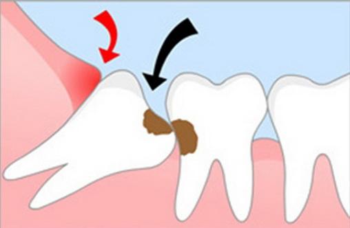 После удаления зуба мудрости чешется