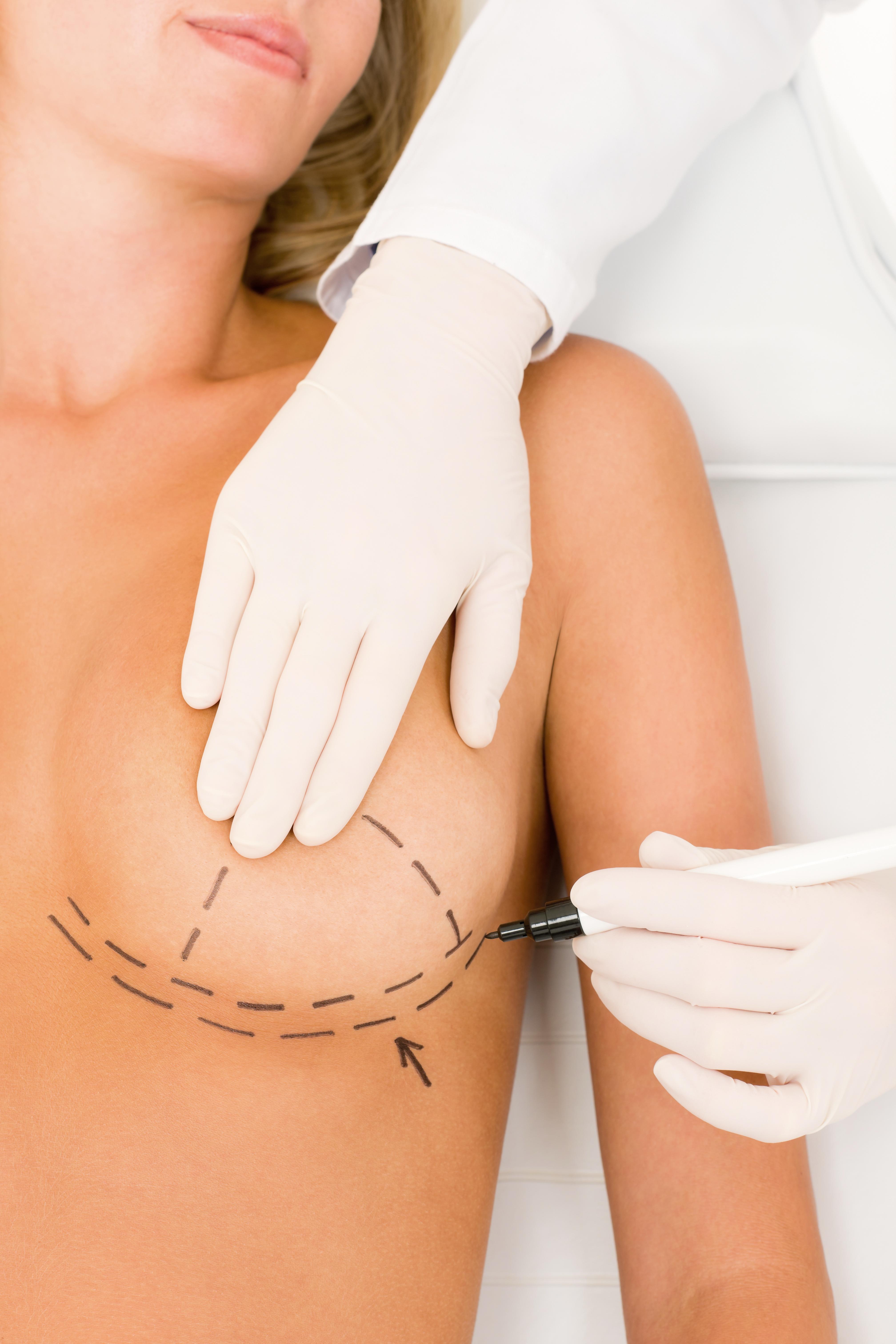 Увеличение груди без хирургии 10 фотография