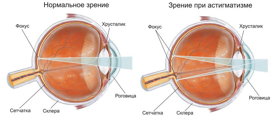 Стоимость стекол для очков при астигматизме
